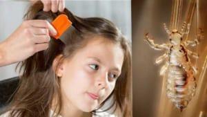 7 mẹo trị chấy hiệu quả tại nhà