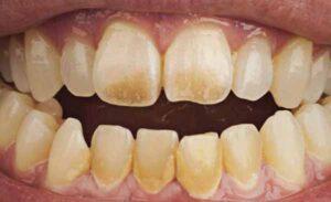 7 nguyên nhân làm răng bị ố vàng